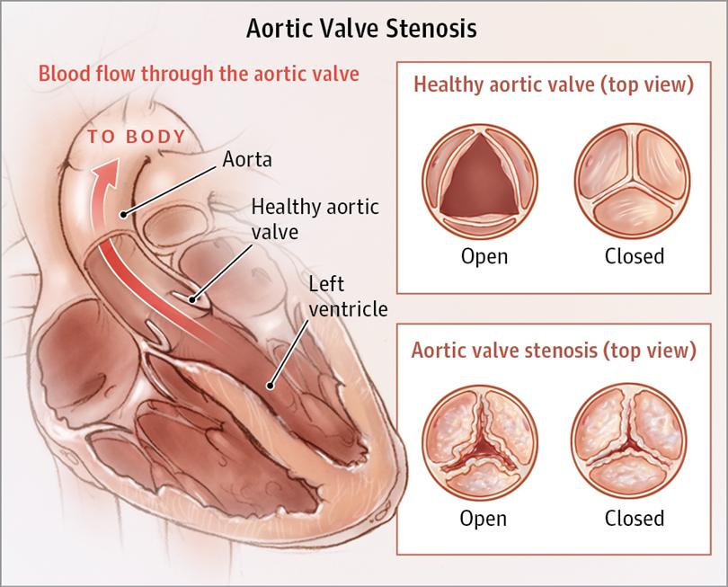 Aortic Valve Stenosis Valvular Heart Disease Jama Cardiology
