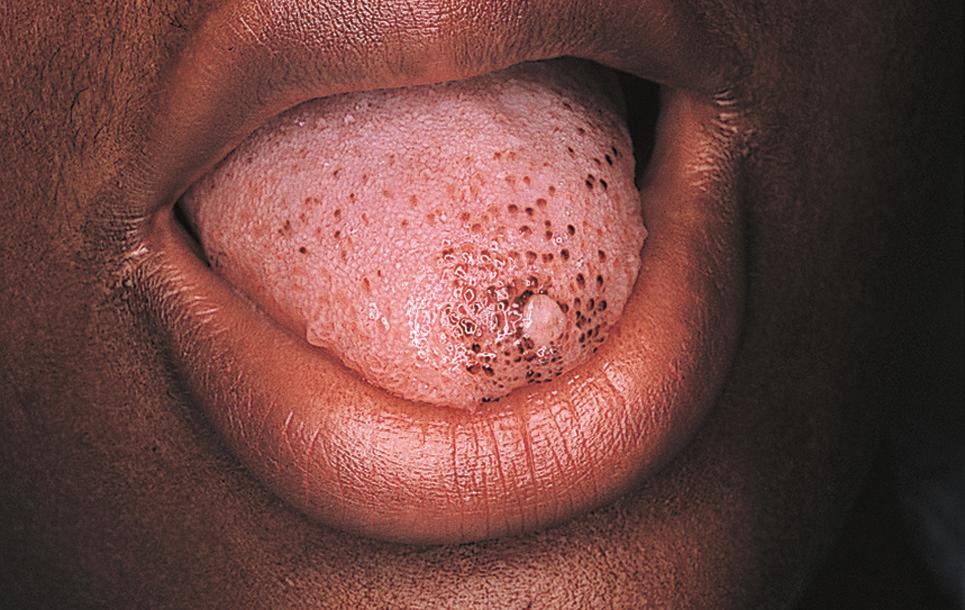 Black Taste Buds Dermatology Jama Dermatology Jama Network