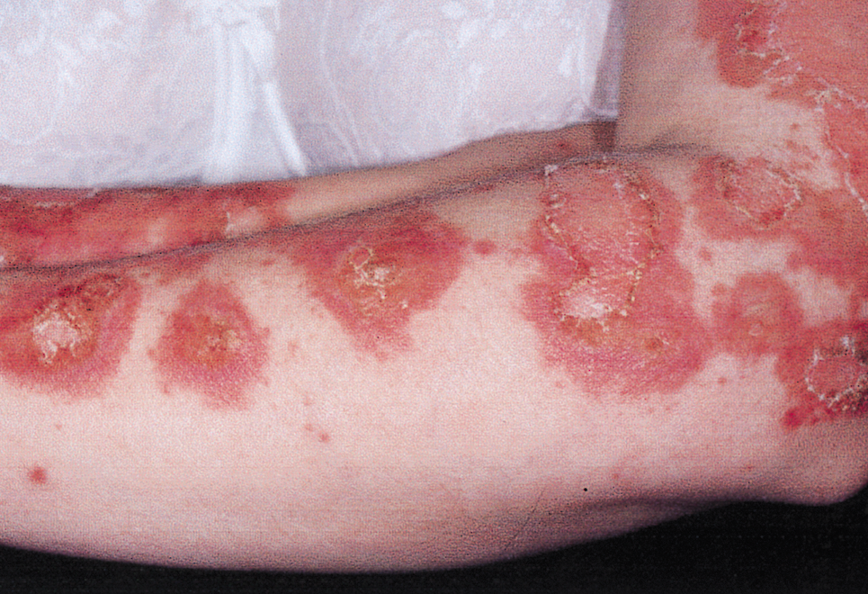 Systemic Lupus Erythematosus Frequency and Severity...