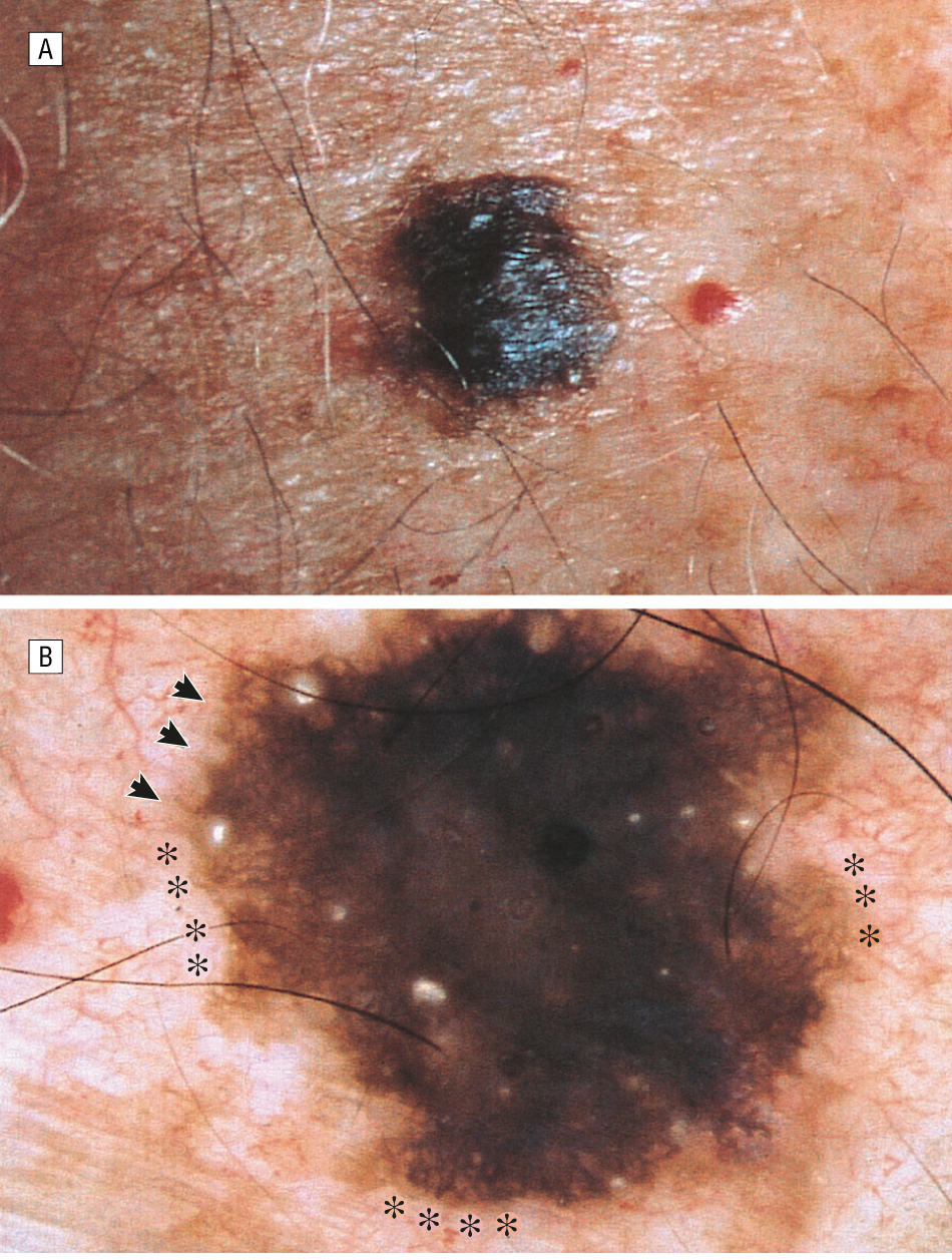 Dermoscopy of Pigmented Seborrheic Keratosis: A ...