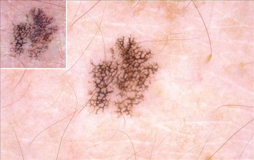 Dermoscopy of Melanocytic Hyperplasias: Subpatterns of ...