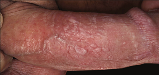 Occurrence of Penile Intraepithelial Neoplasia Following