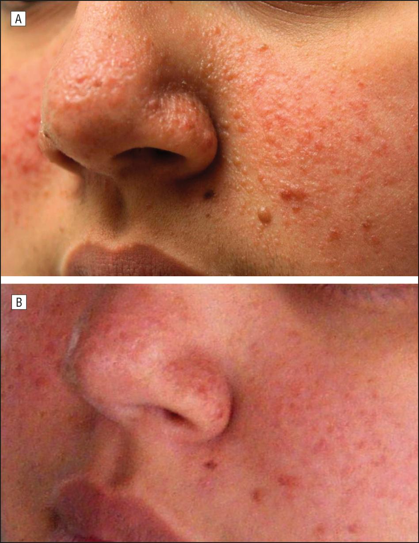 Tuberous sclerosis angiofibromas pictures