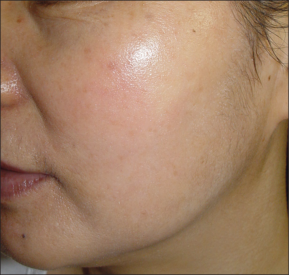 Carvedilol for the Treatment of Refractory Facial Flushing and Persistent  Erythema of Rosacea. | Dermatology | JAMA Dermatology | JAMA Network
