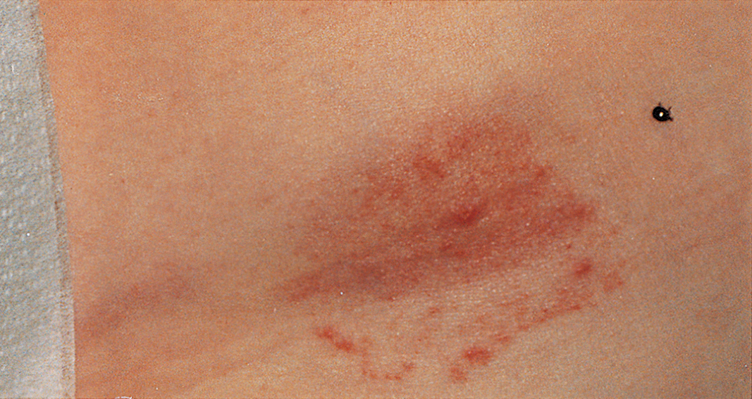 Physician Diagnosed Erythema Migrans And Erythema Migrans