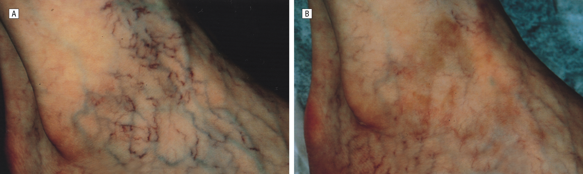 Pulsed Alexandrite Laser For The Treatment Of Leg Telangiectasia And