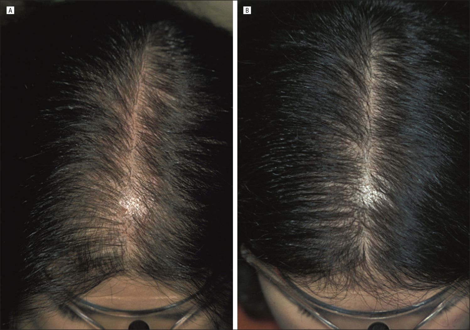 Finasteride Treatment Of Female Pattern Hair Loss Clinical