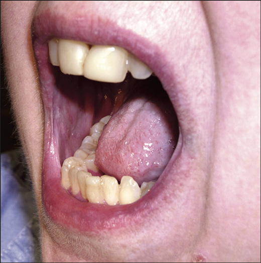 Oral Erosive Lichen Planus Treated With Efalizumab