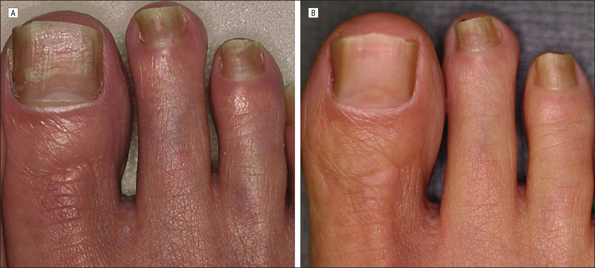 Successful Treatment Of Toenail Onychomycosis With Photodynamic