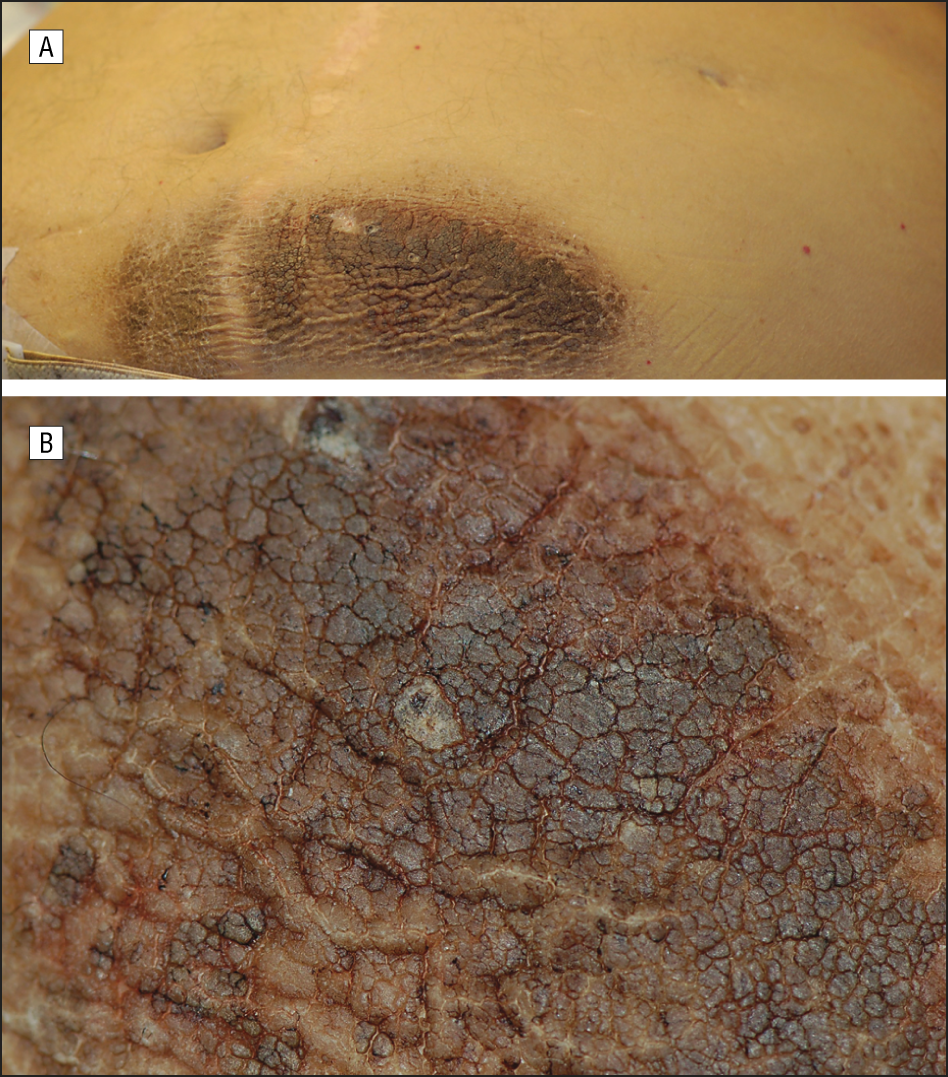 Presentation Of Exogenous Insulin Derived Acanthosis Nigricans A Circumscribed Dark Brown Plaque On