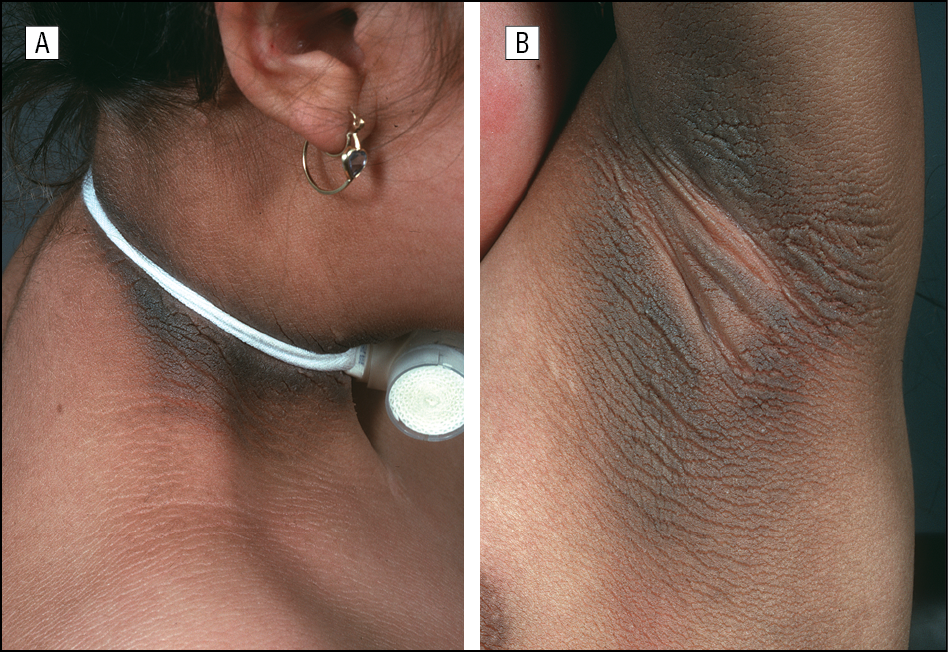 Severe Acanthosis Nigricans In A Patient With Crouzon Syndrome