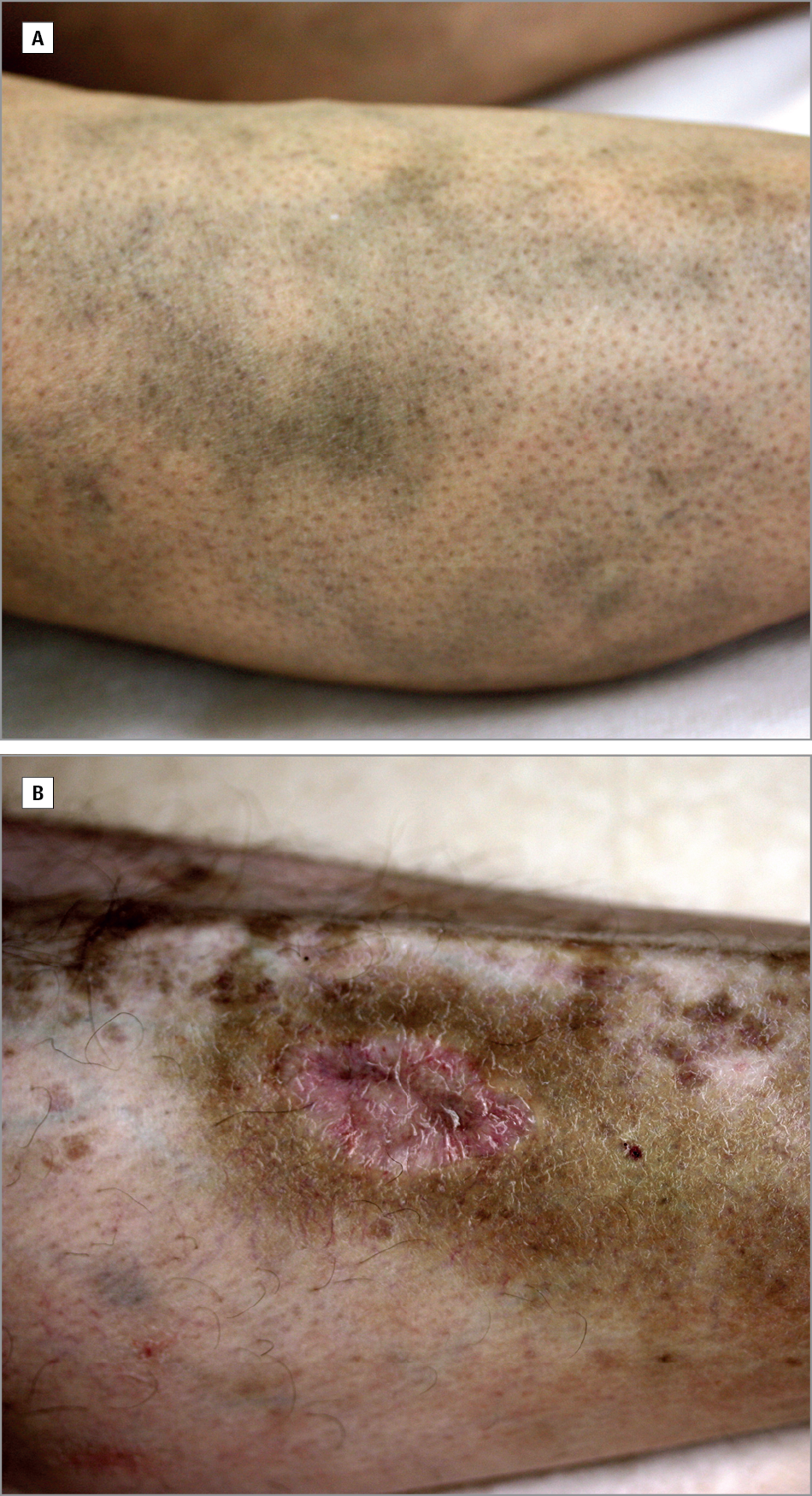 Hydroxychloroquine-Induced Pigmentation in Patients With ...