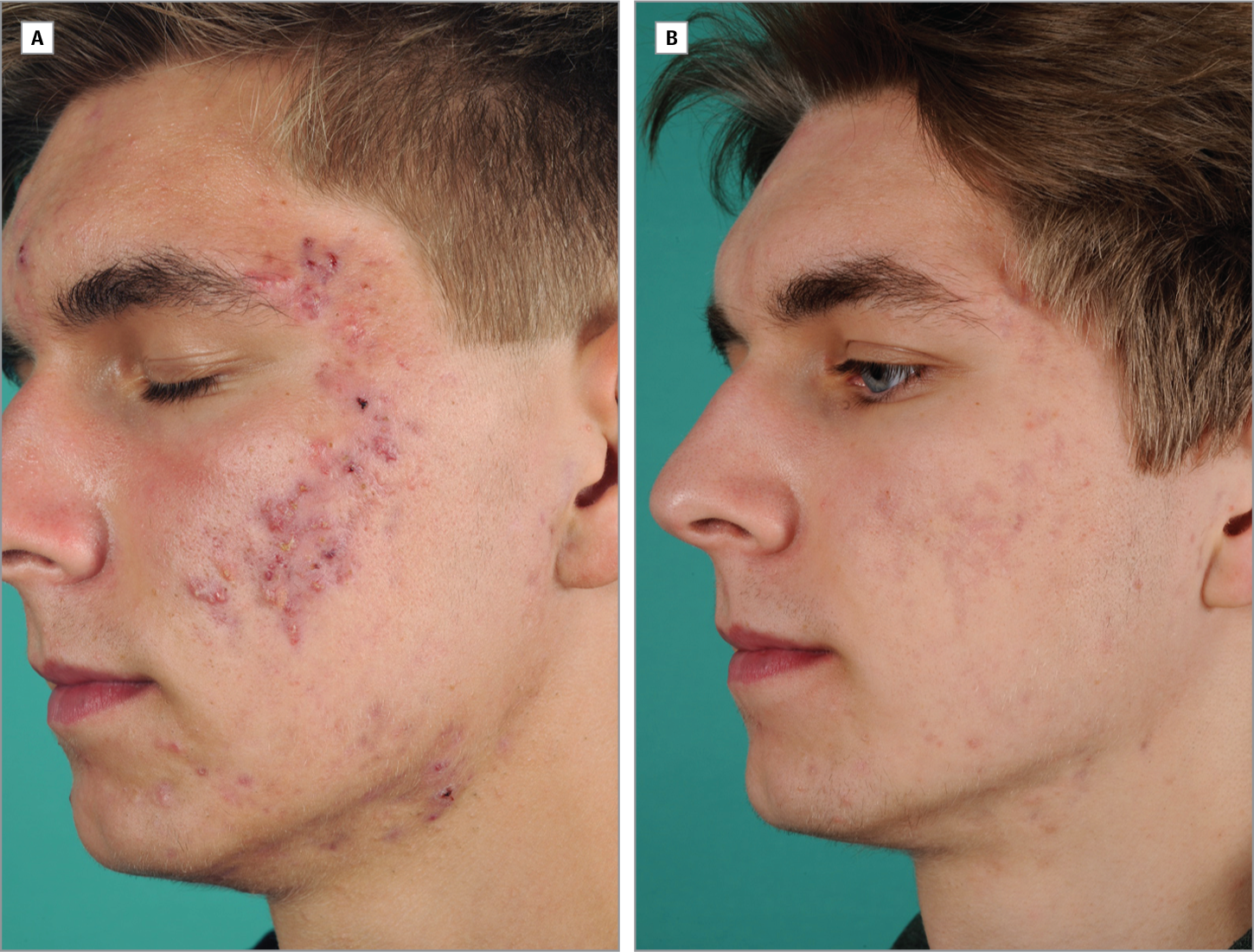 9aacc62c7c9a Adalimumab for the Treatment of Refractory Acne Conglobata.   Acne ...