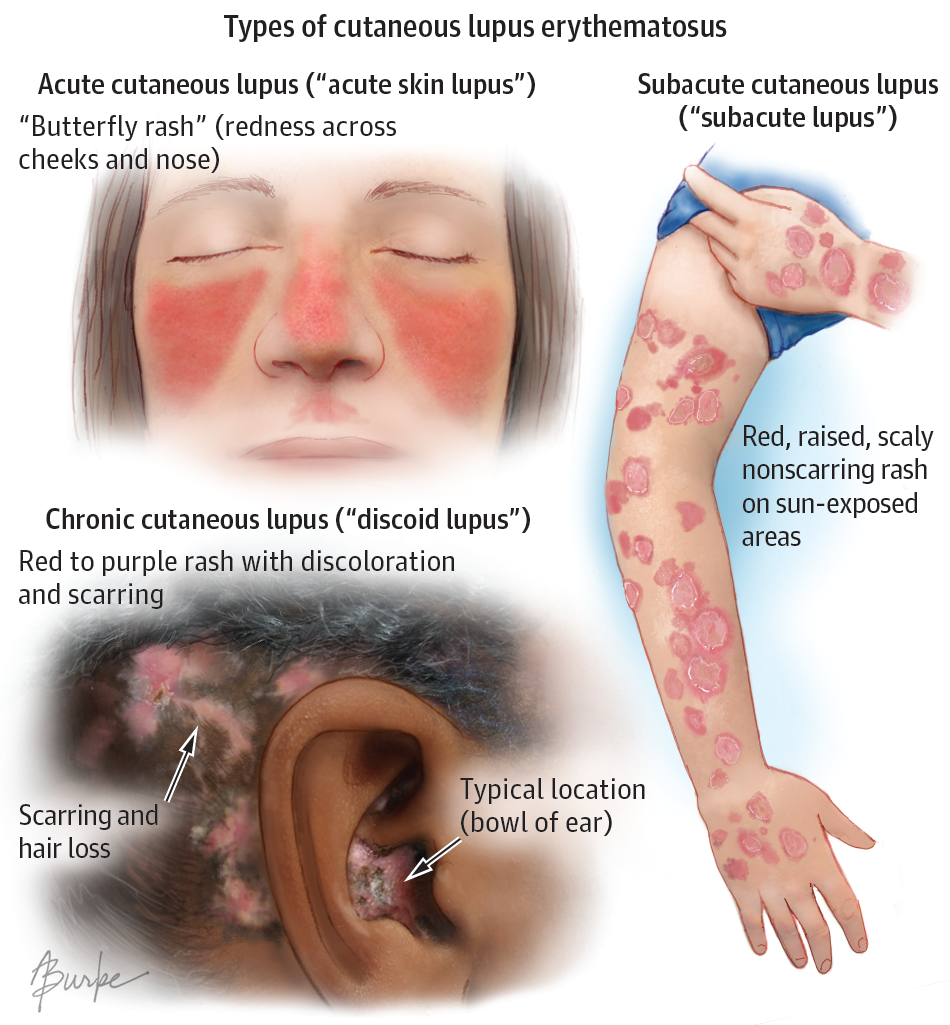 Cutaneous Lupus Erythematosus Dermatology Jama Dermatology