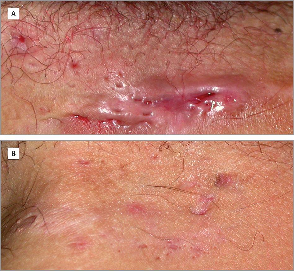 Cryoinsufflation For Hurley Stage Ii Hidradenitis Suppurativa A