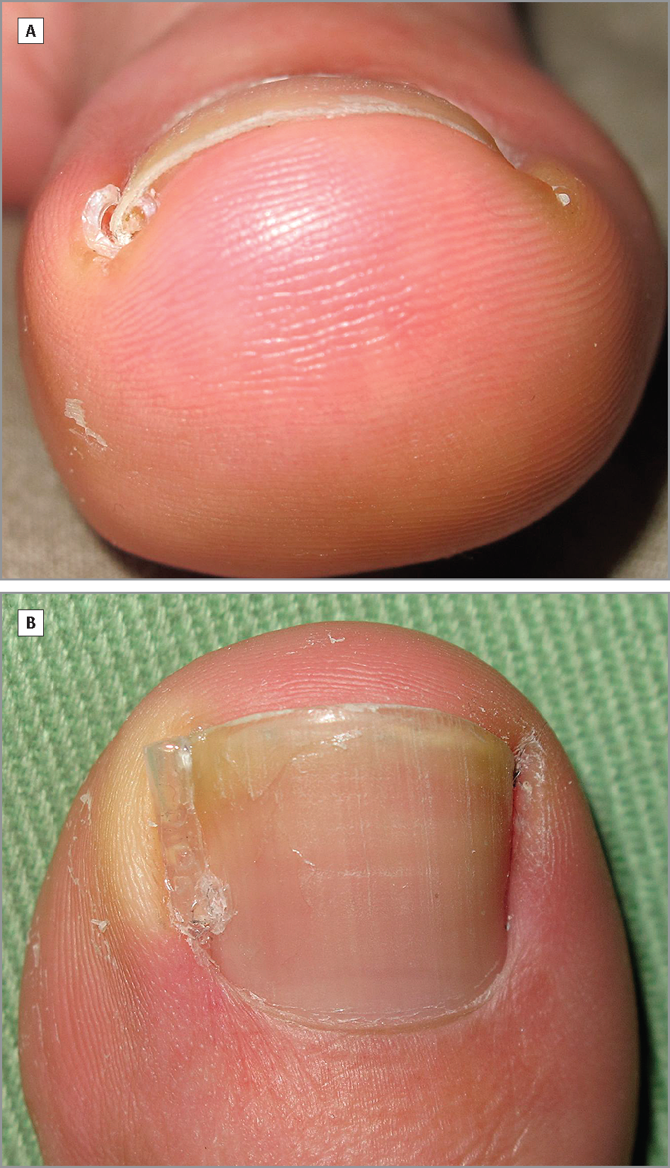 A Conservative Method To Gutter Splint Ingrown Toenails