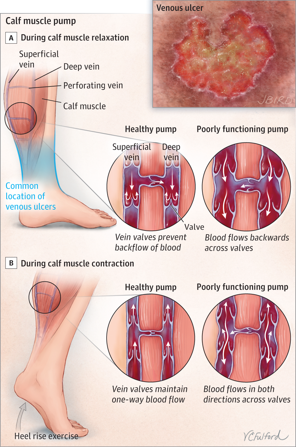 Venous Ulcers Dermatology Jama Dermatology Jama Network