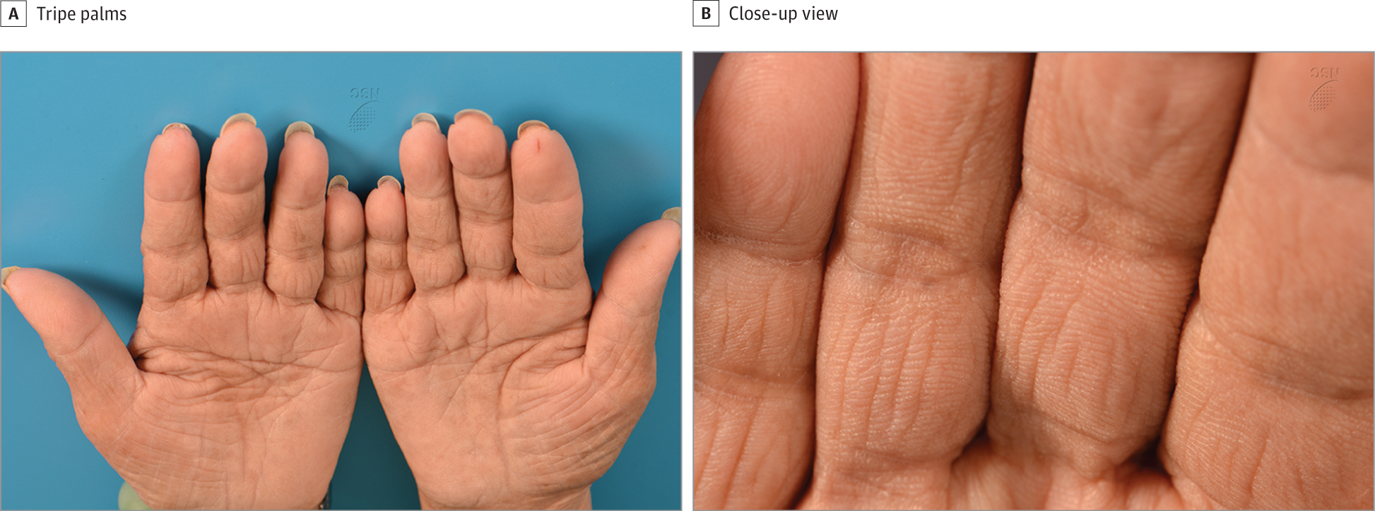 Clinical Images Of Tripe Palms