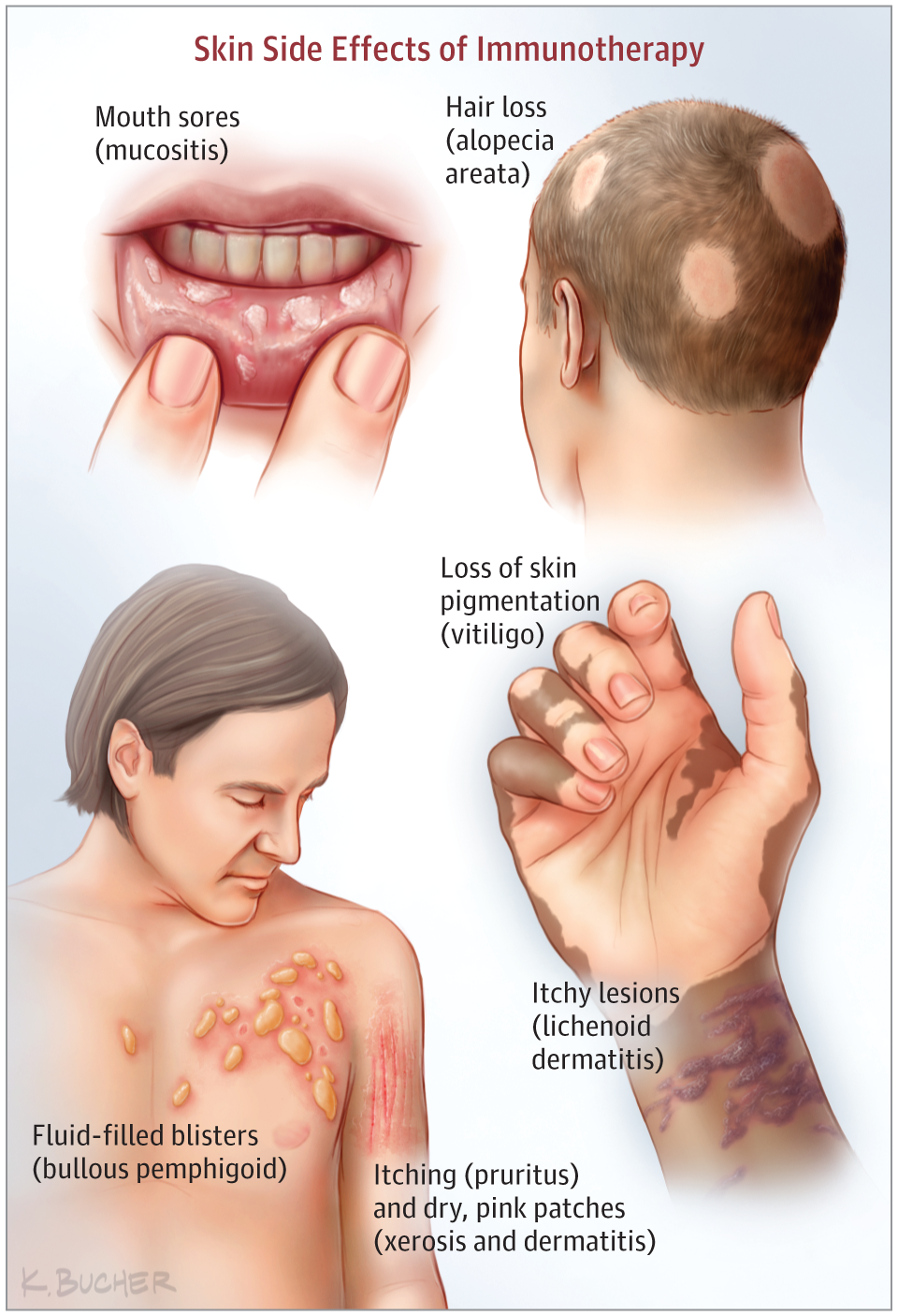 Immunotherapy And Skin Side Effects Dermatology Jama
