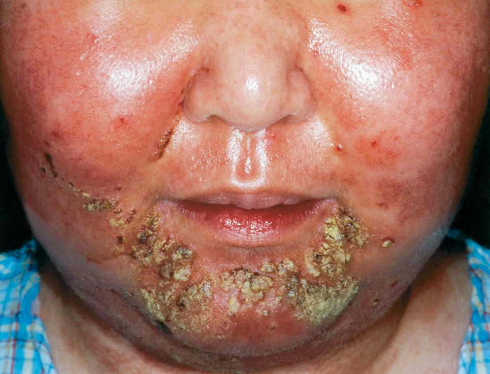 Successful Treatment Of Recalcitrant Pemphigus Vulgaris