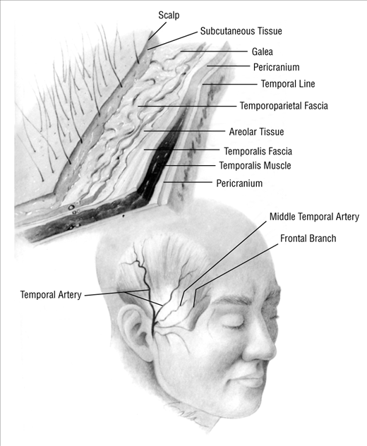 Temporoparietal Fascial Flap In Orbital Reconstruction Oncology