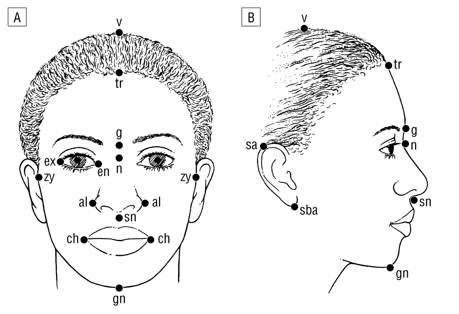Anthropometric Facial Analysis Of The African American Woman