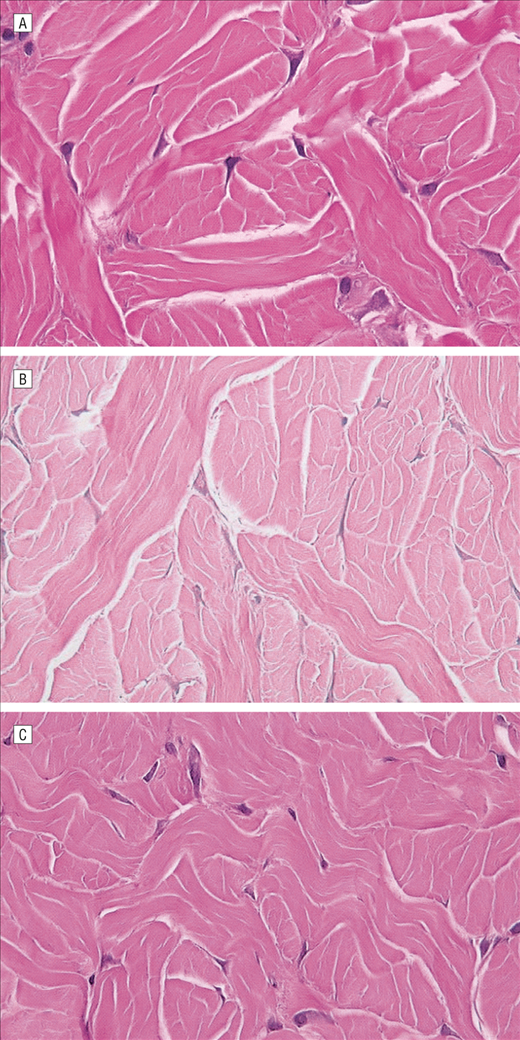 A Systematic Histologic Analysis Of Nonablative Laser