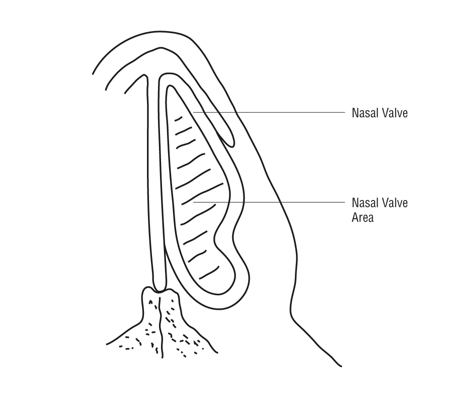Endonasal Spreader Graft Placement as Treatment for