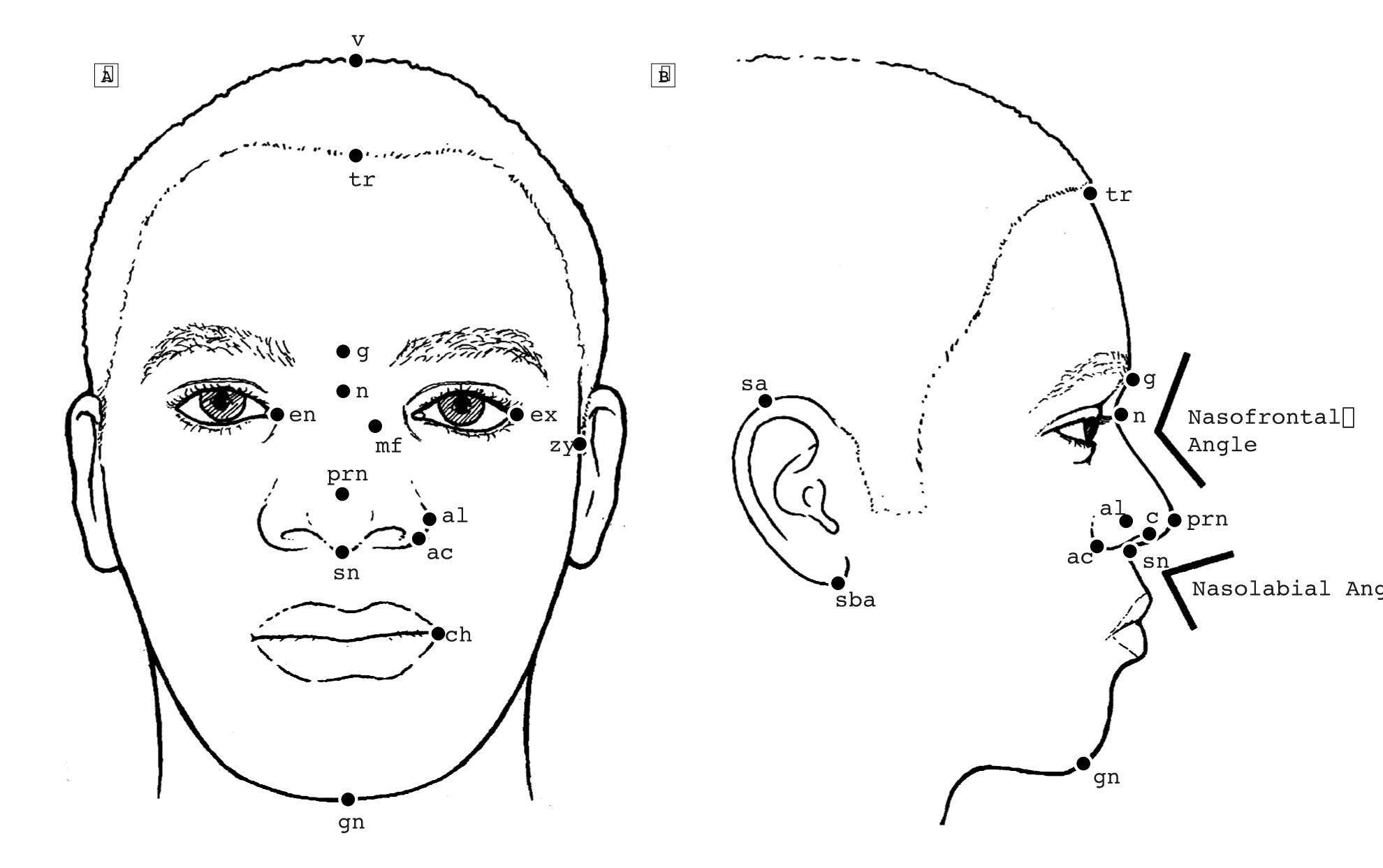 The Average African American Male Face: An Anthropometric