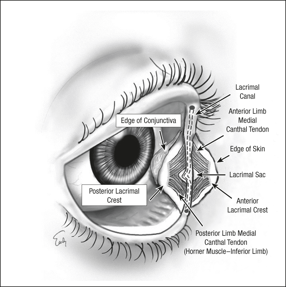 Precaruncular Medial Canthopexy External Eye Disease Jama