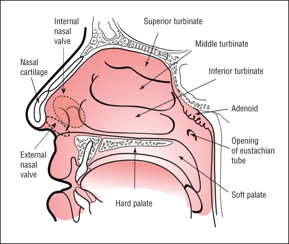 Nasal Batten Grafts Are Patients Satisfied Facial Plastic