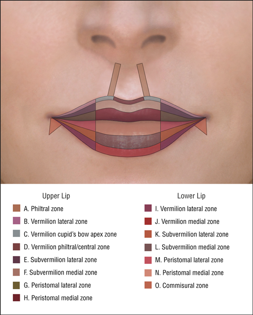 A New Classification Of Lip Zones To Customize Injectable Lip