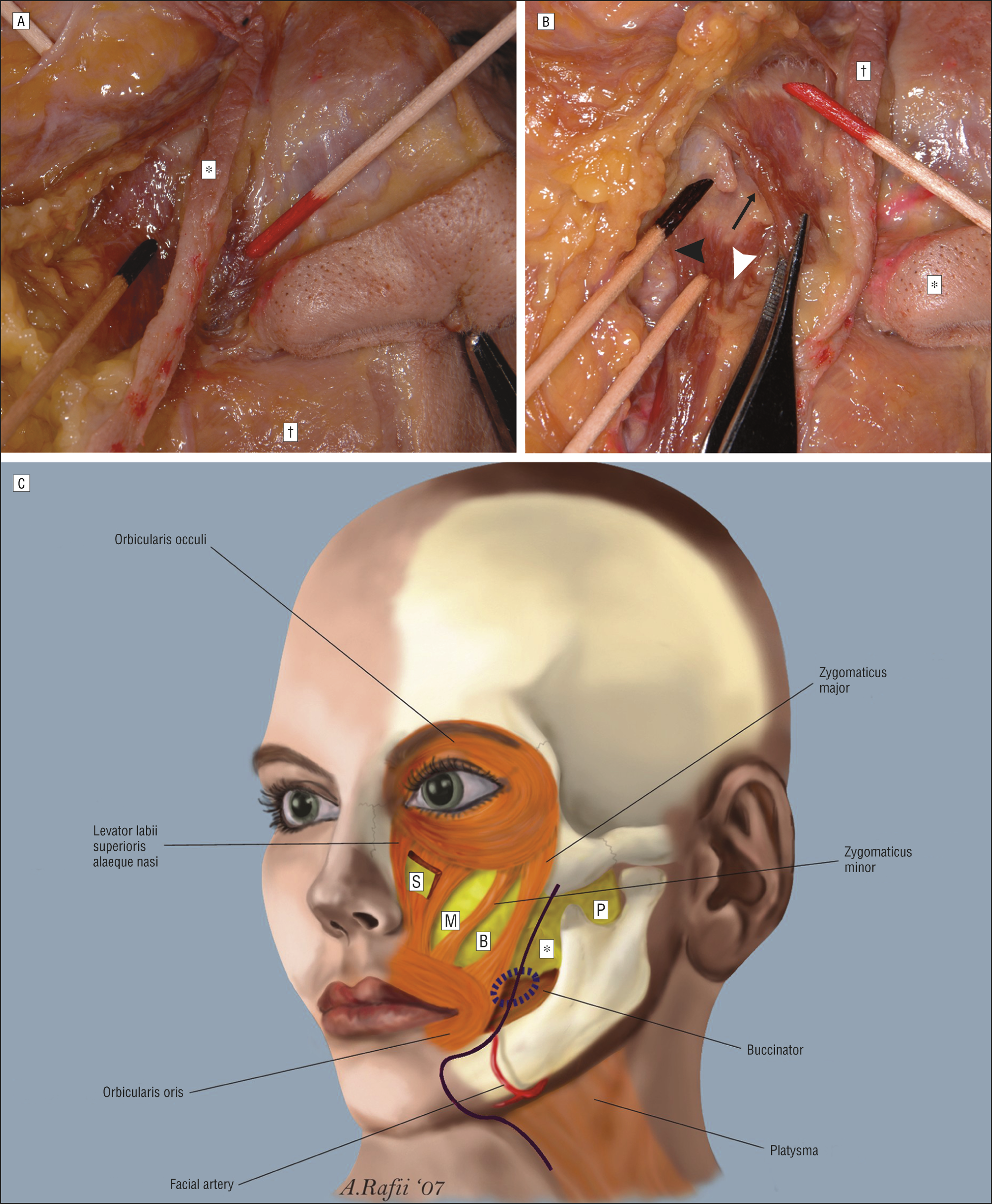 Surgical Anatomy Of The Face Implications For Modern Face Lift