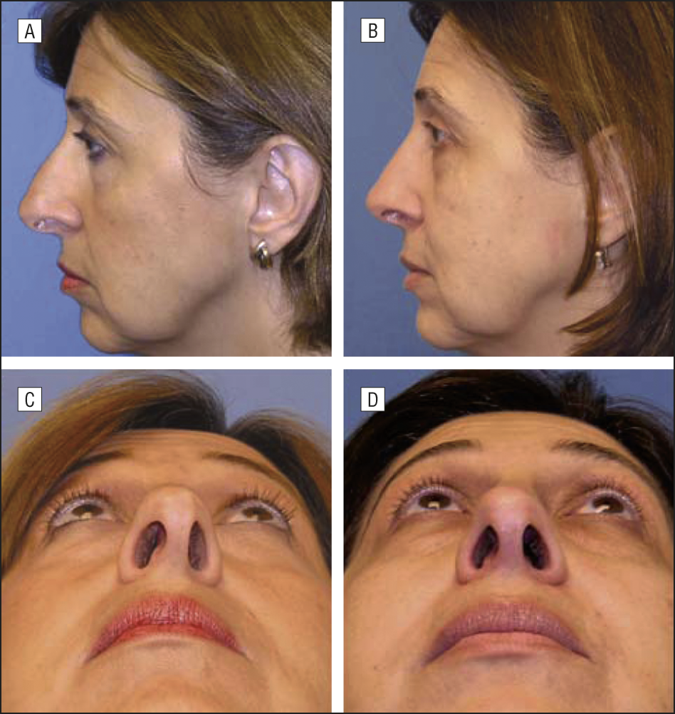 The Tripod Theory Of Nasal Tip Support Revisited: The