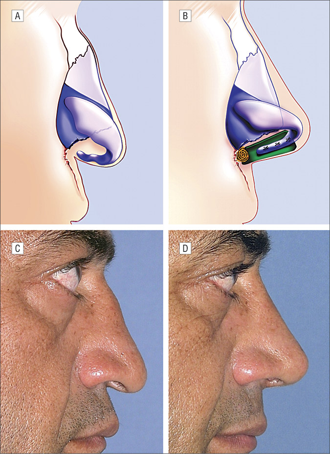 The Caudal Septum Replacement Graft Facial Plastic Surgery Jama