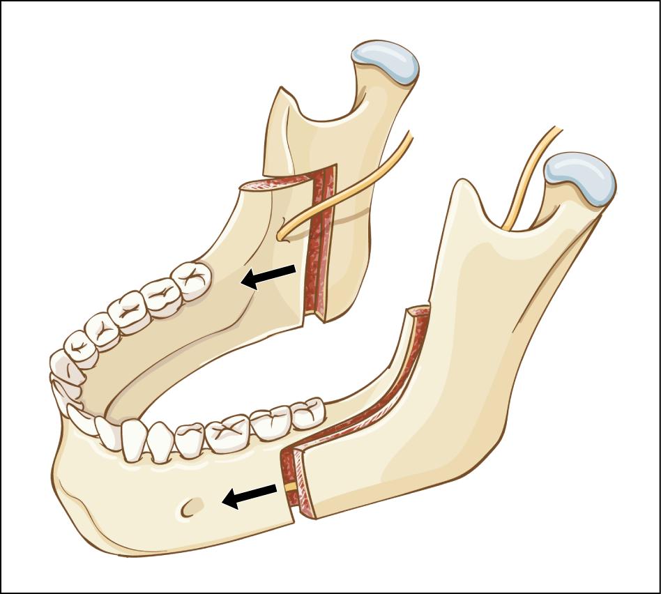 Mandibular Osteotomies And Distraction Osteogenesis Evolution And