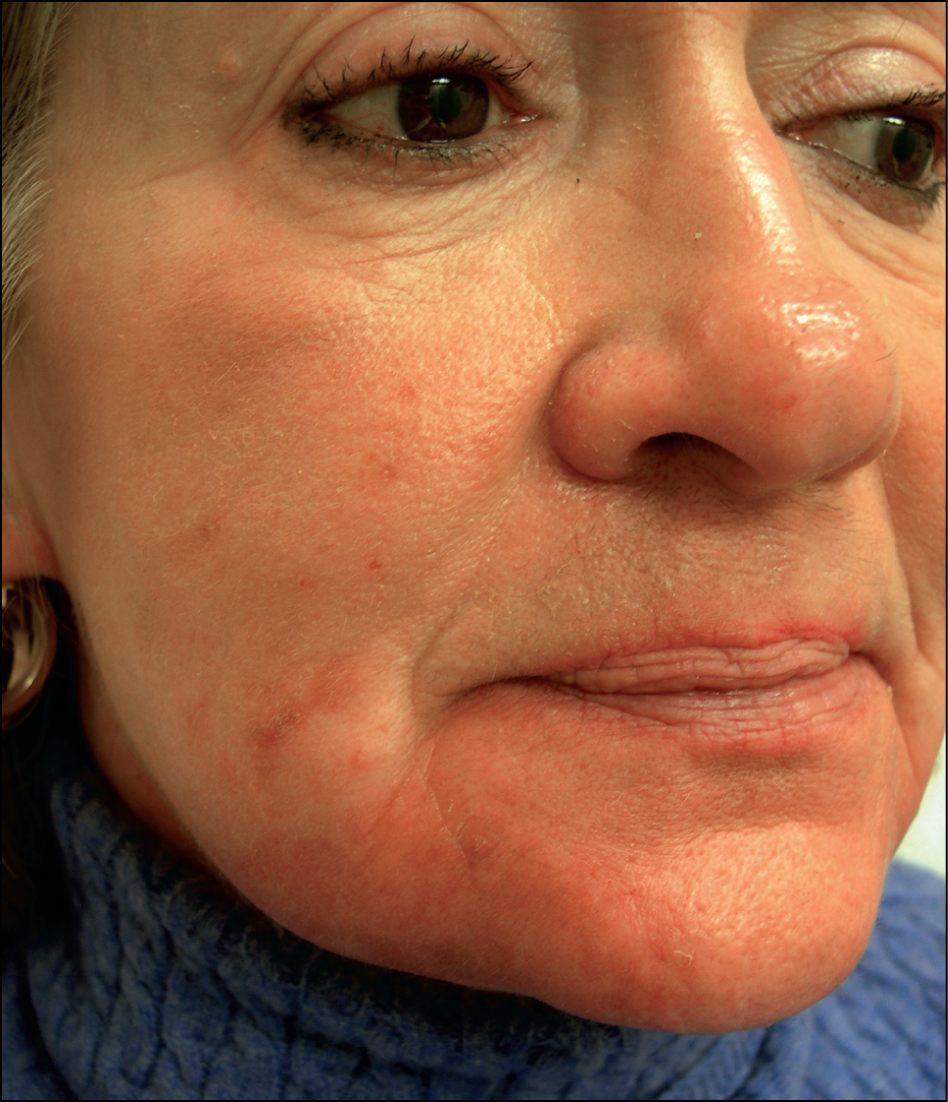 Figure 2. Cellulitis of chin and jawline following treatment of the prejowl  region with calcium
