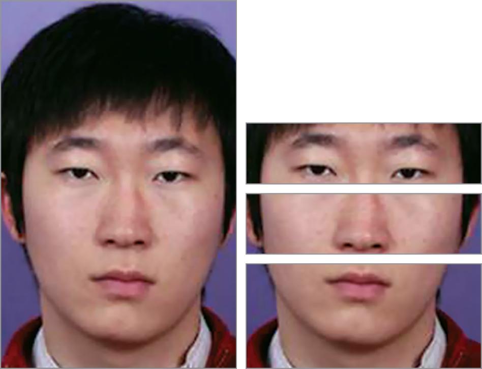 Facial Subunits