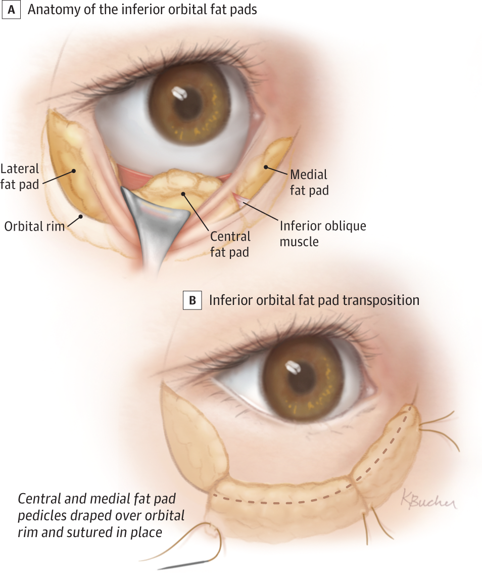 Biplanar Contour Oriented Approach To Lower Eyelid And Midface