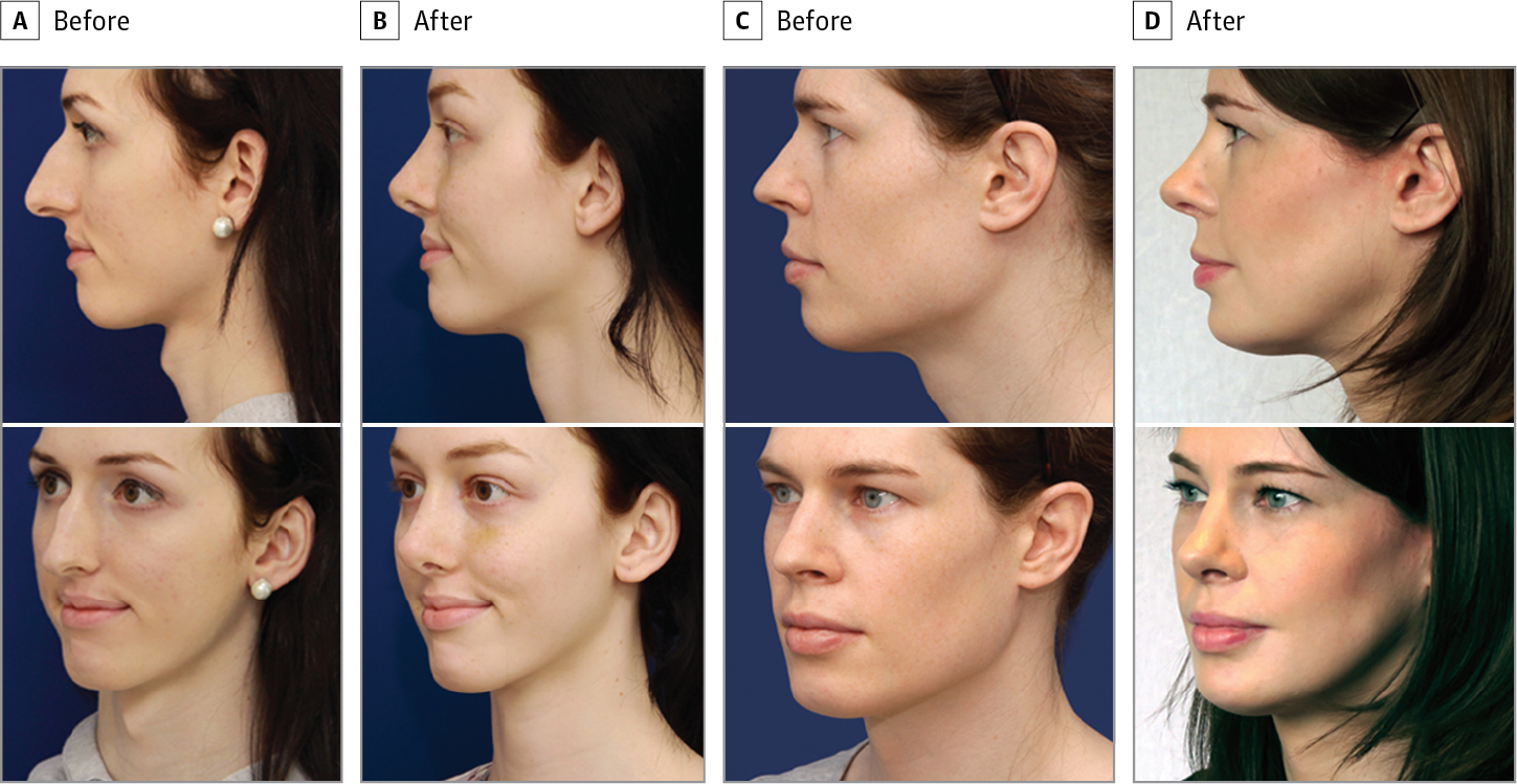 Preoperative and Postoperative Clinical Results After Facial Feminization  Surgery Including Rhinoplasty Associated With Other Procedures