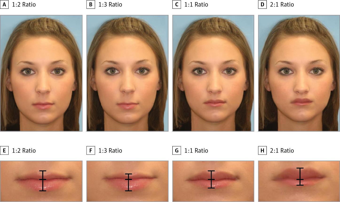 Phase 2: Generating Upper to Lower Lip Ratios
