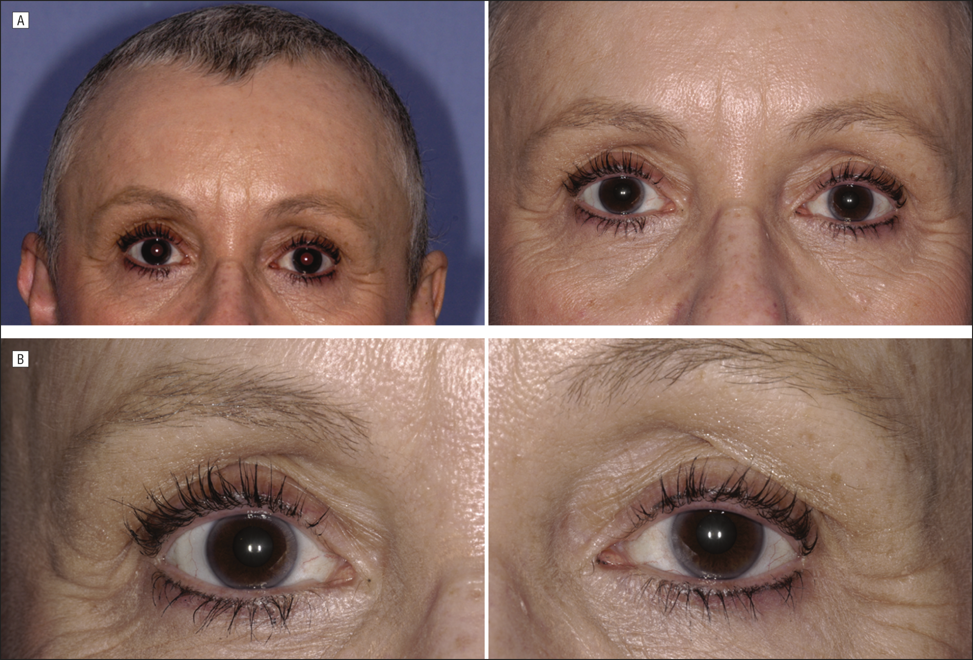 Eyelash Preservation During Chemotherapy And Topical Prostaglandin