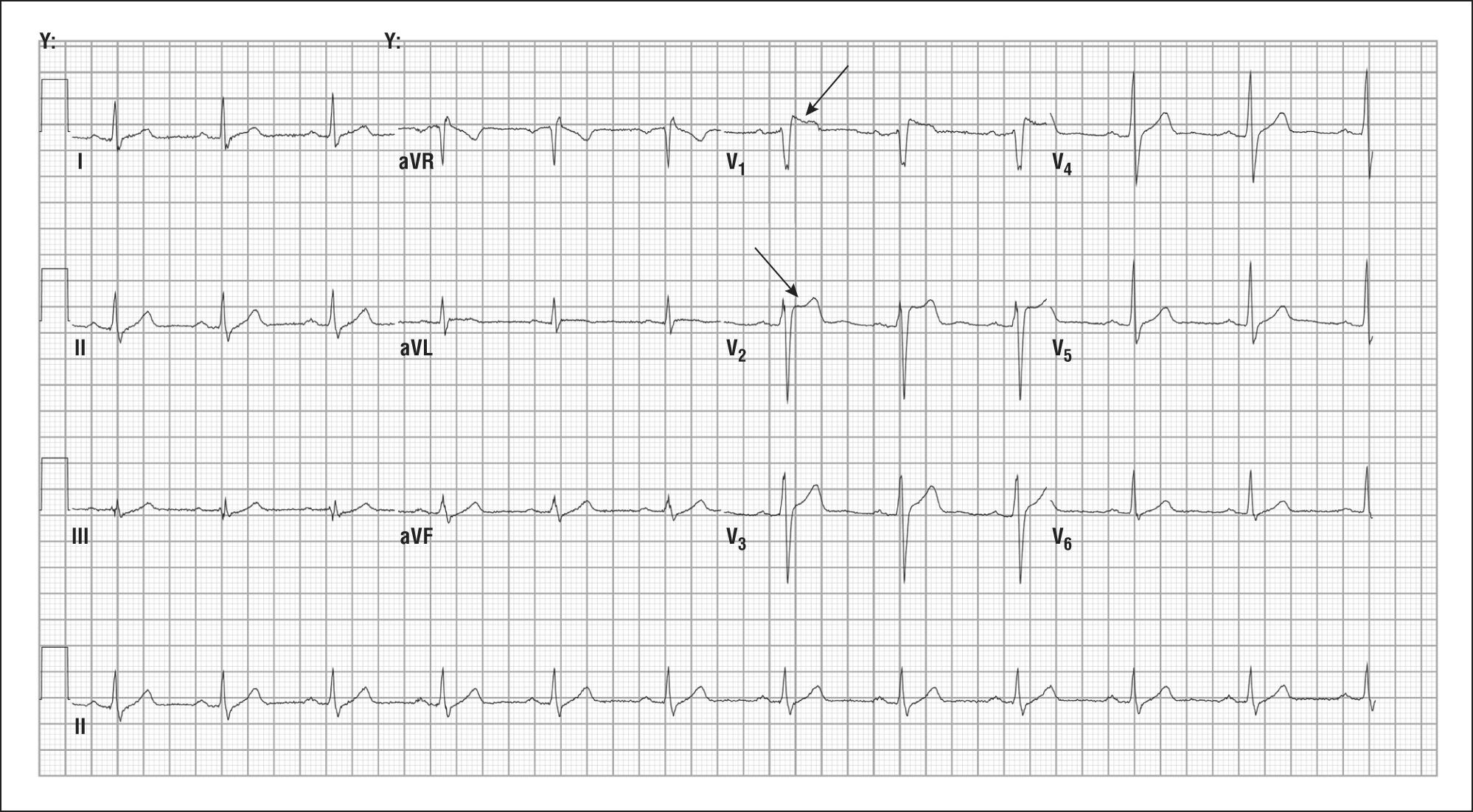 Life-Threatening ST-Segment Elevation Without Coronary