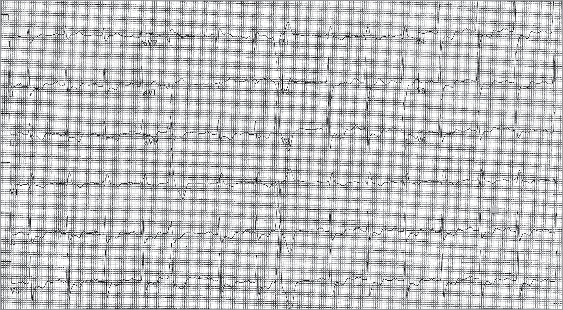 An Elderly Patient With Palpitation and a Negative Nuclear