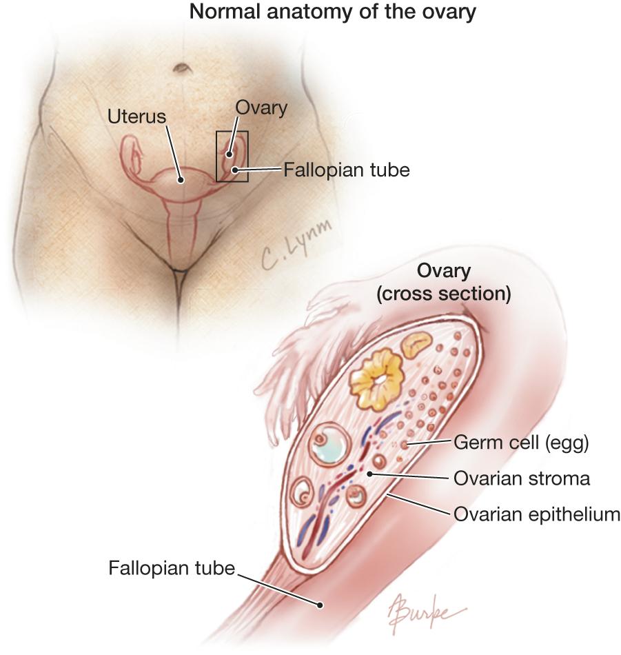 Ovarian Cancer Oncology Jama Jama Network