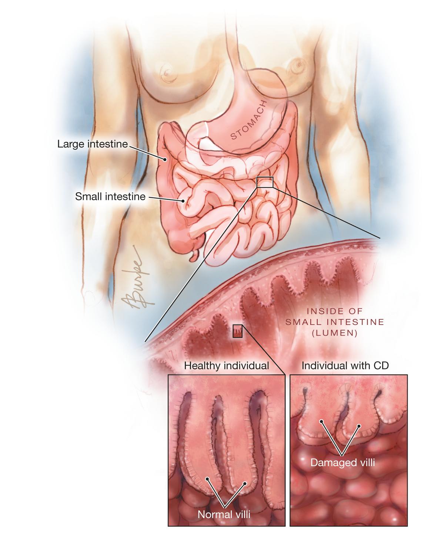 Celiac Disease Gastroenterology Jama Jama Network