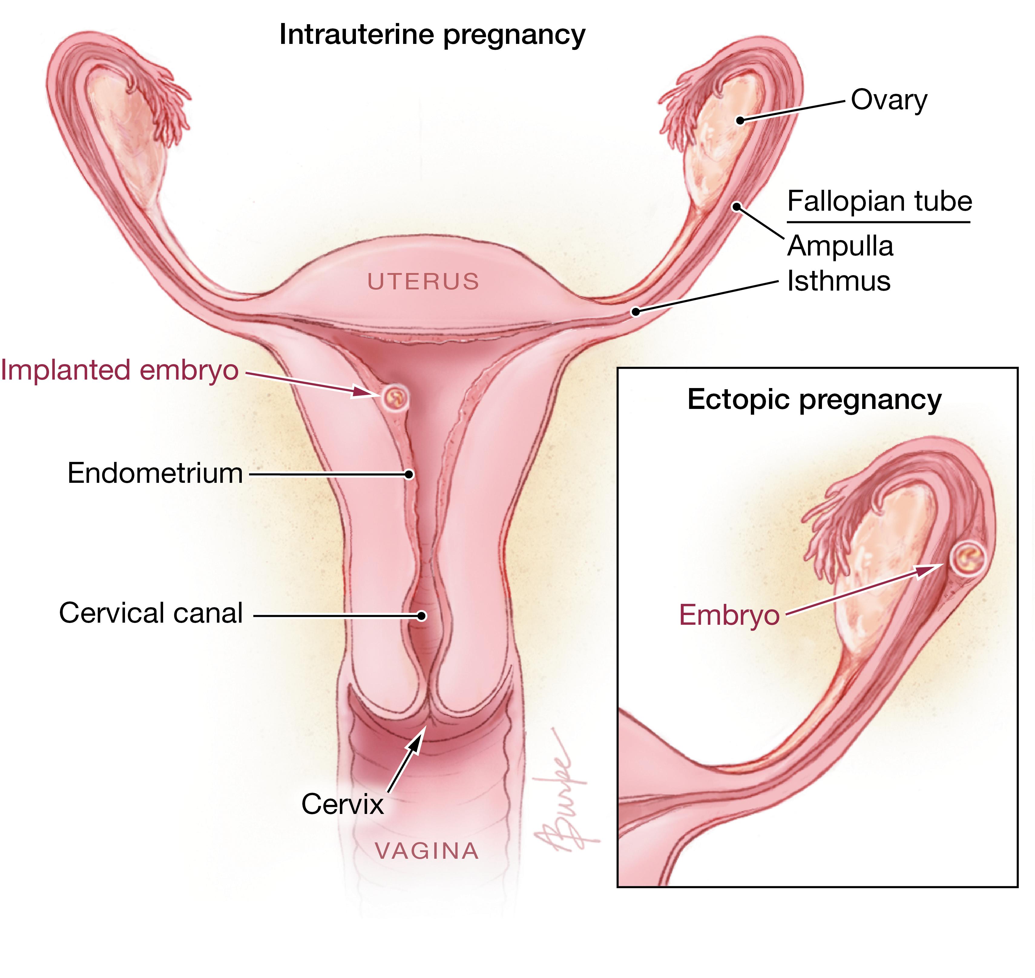 Ectopic Pregnancy Pregnancy Jama Jama Network
