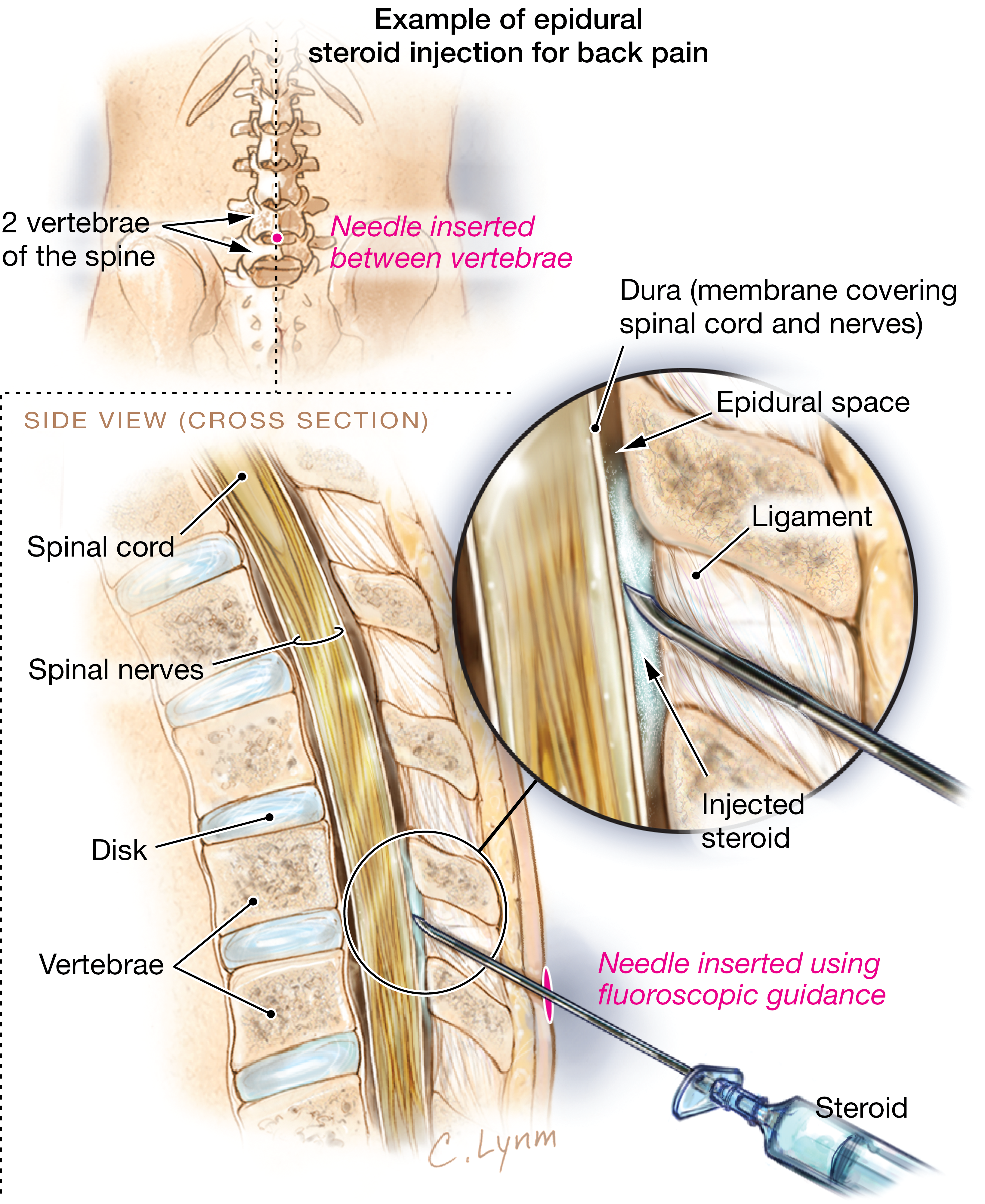 Steroid Injections To Treat Back Pain Patient Information Jama