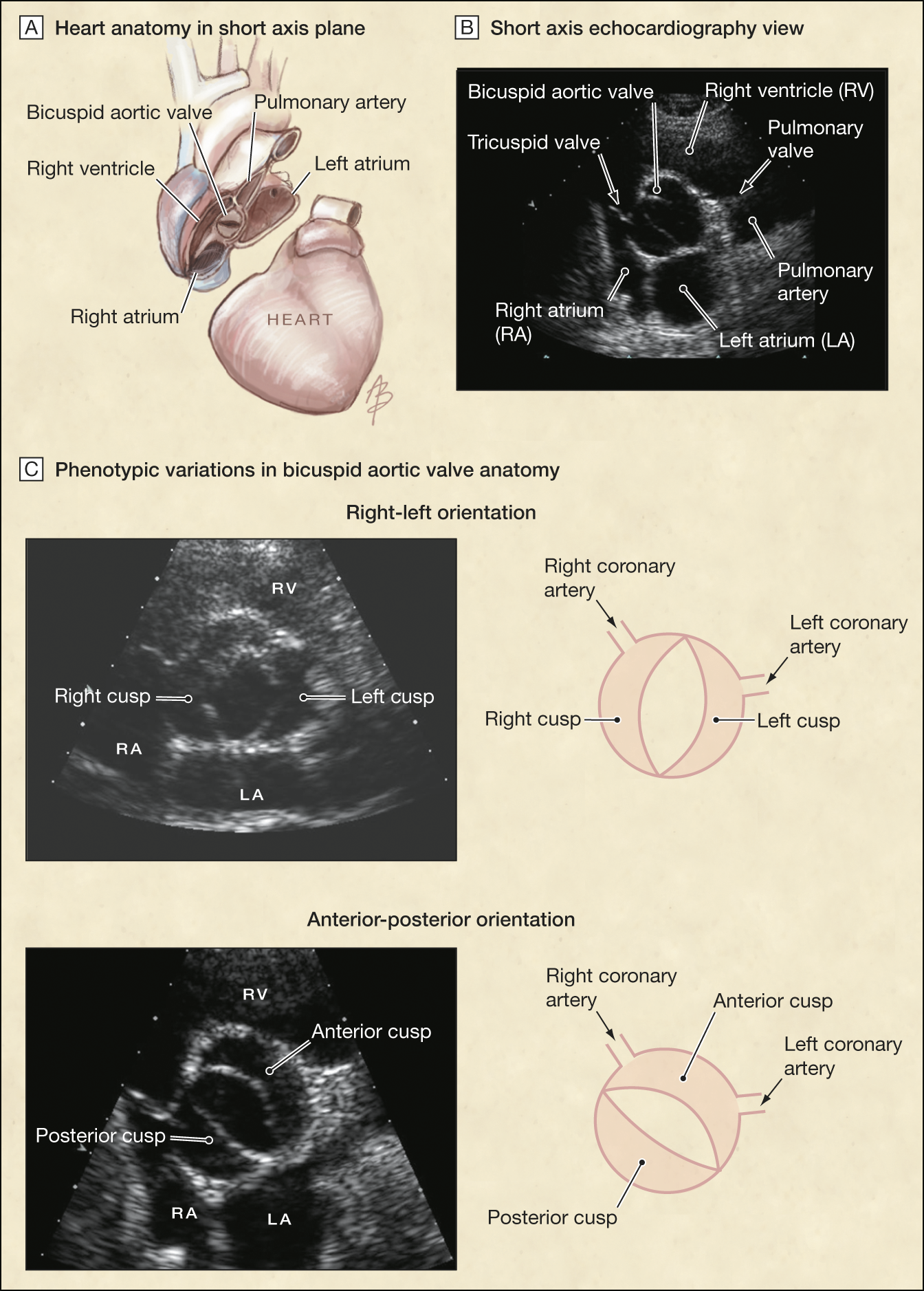 Outcomes Adults Bicuspid Aortic Valves