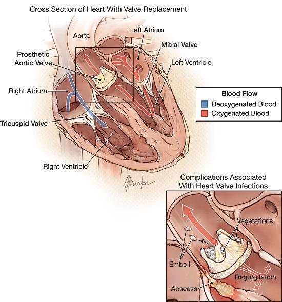 Heart Valve Infections Valvular Heart Disease Jama Jama Network